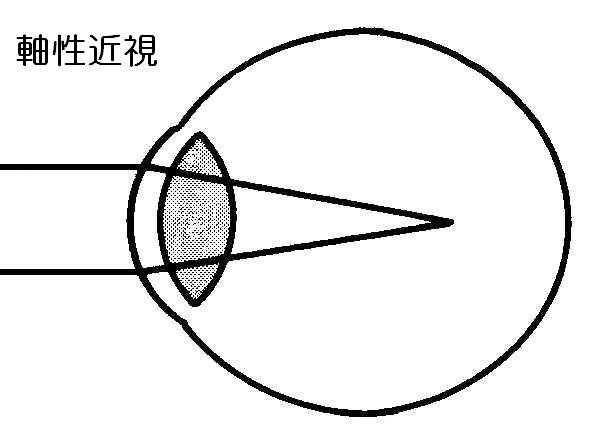 ● 視力回復センター 山口県下松市 ● 視力は回復できます! ● 視力... 視力は回復できます